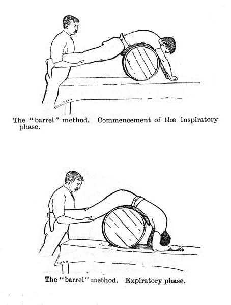 The Barrel method of resuscitation