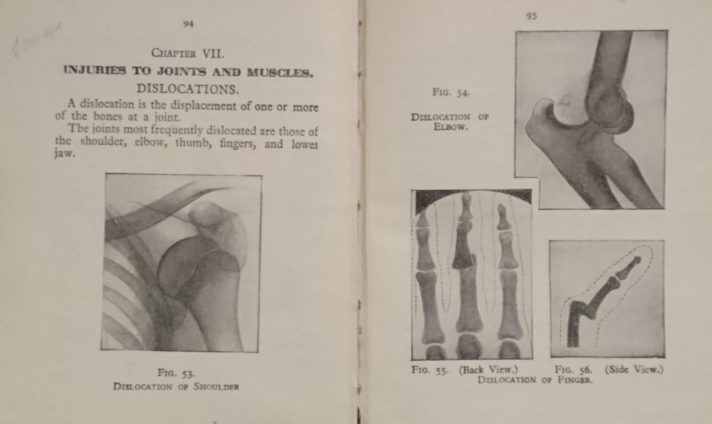 Image of a page of First Aid Manual with x-ray picutres